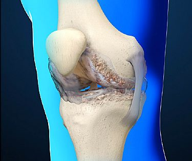 arthritic knee illustration