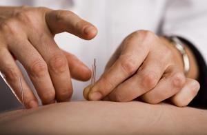 acupuncture_needle